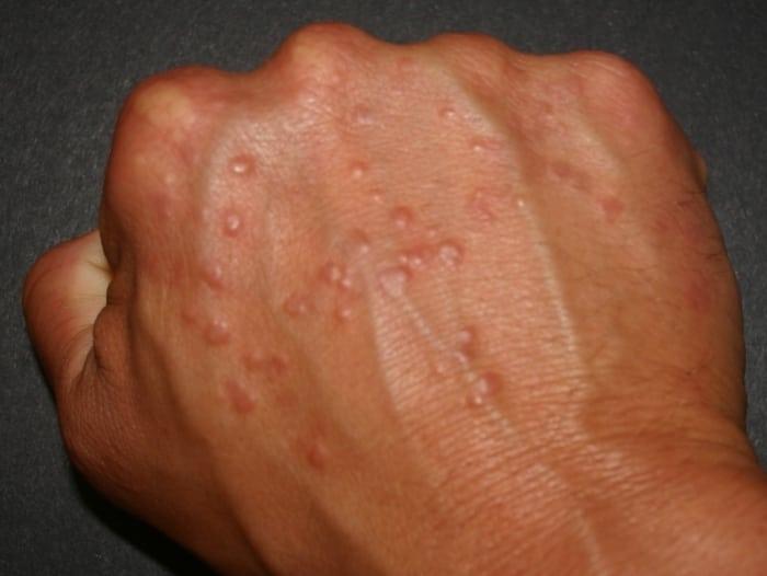 аллергия прыщики на теле чешутся