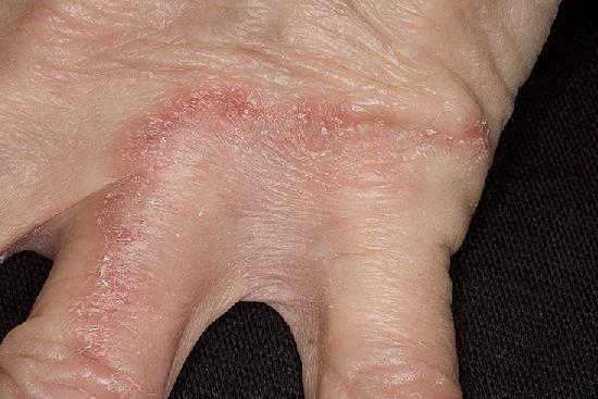 Псориаз ногтей пальцев рук лечение и правильный уход за ногтями