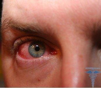 аллергия на диклофенак симптомы фото