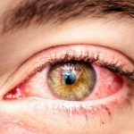 покраснение на глазах от аллергии