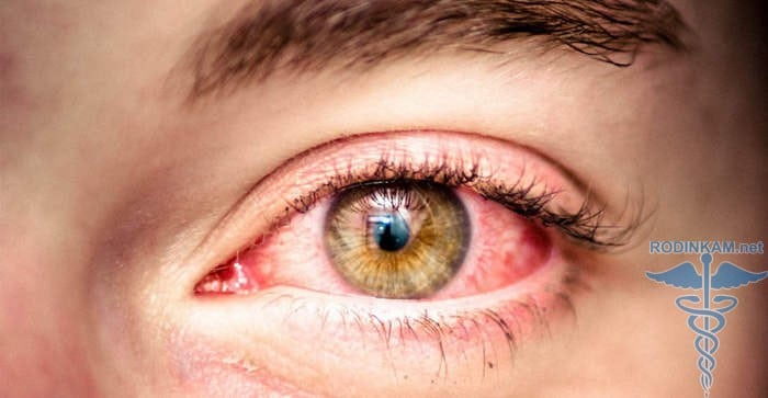 аллергические реакции от паразитов