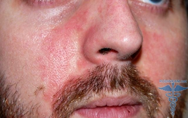 Лечить трещину губы