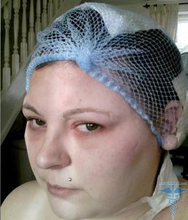 аллергия от краски для волос лечение