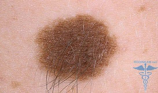 Что будет если выдернуть волос из родинки