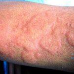 аллергия на хлорку в воде