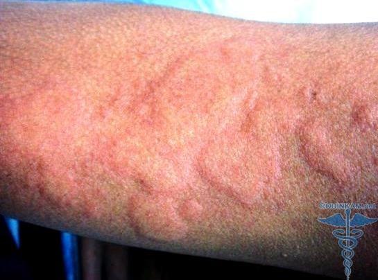 аллергия на хлорку признаки
