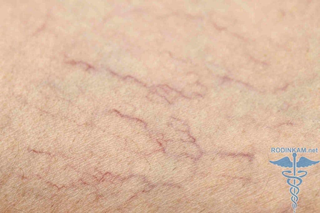 Как вылечить варикоз на ногах без операций