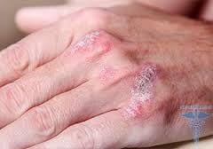 Начальная стадия псориаза на руках фото лечение мази