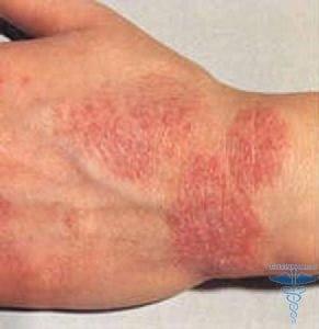 аллергия на лице у подростка