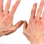 дерматит перед лечением