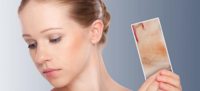 Что такое купероз и как его лечить?