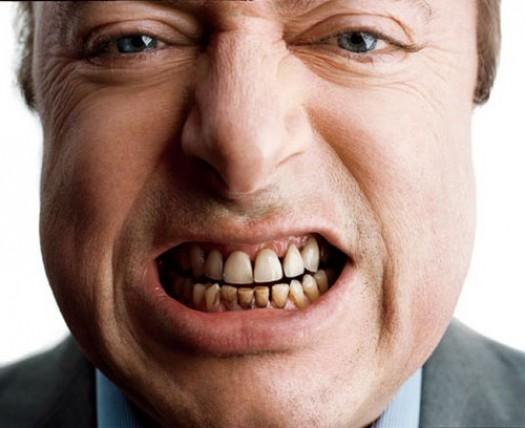 Как убрать налет на зубах от сигарет?