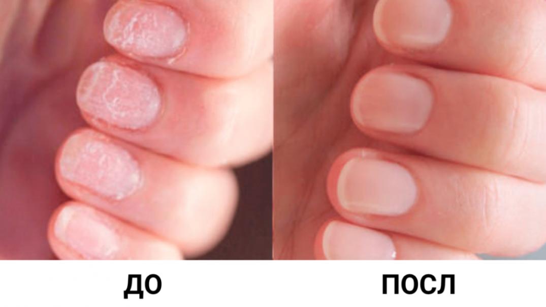 Как укрепить ногти: рецепты ванночек в домашних условиях