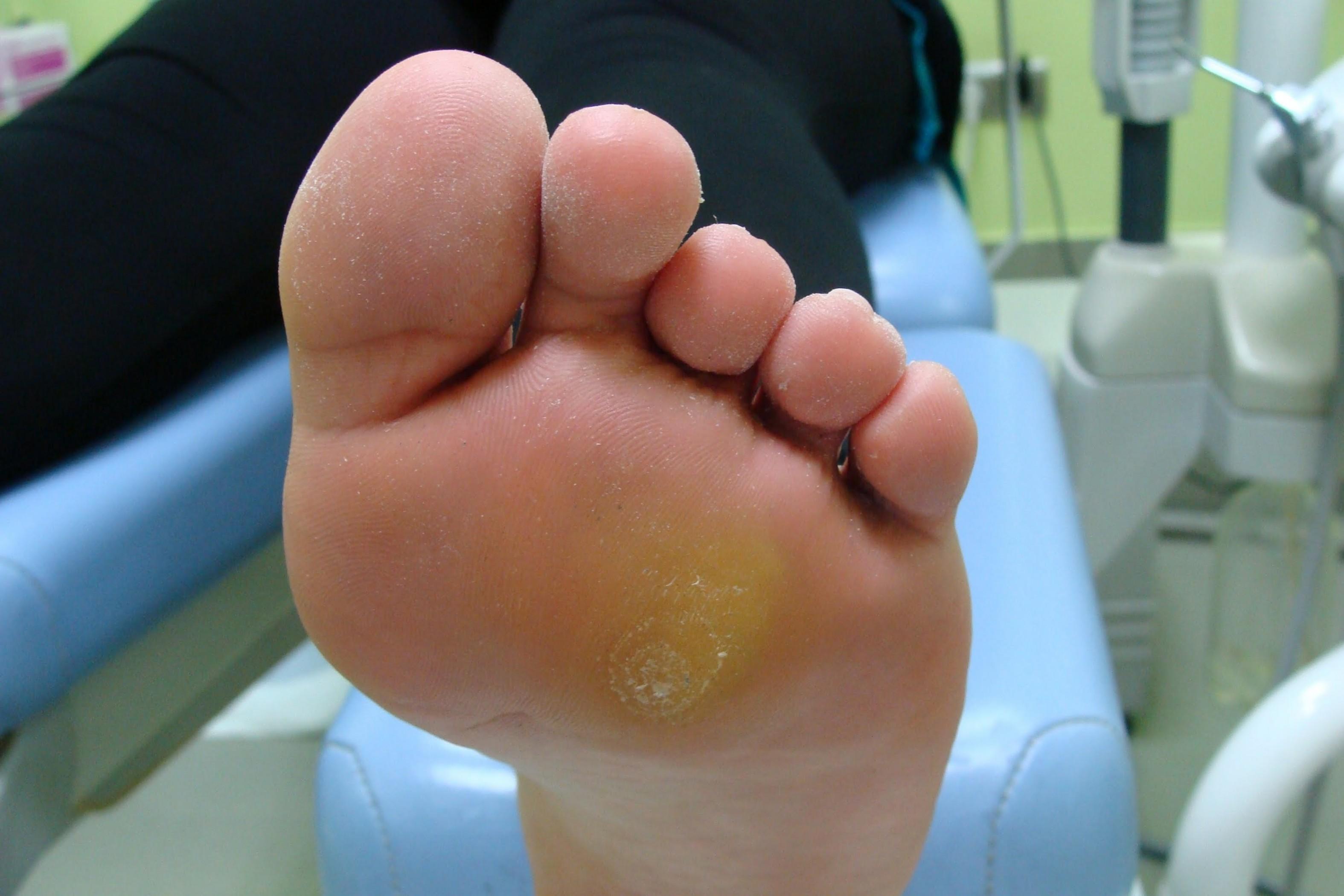 Натоптыши со стержнем: лечение фармакологическими препаратами