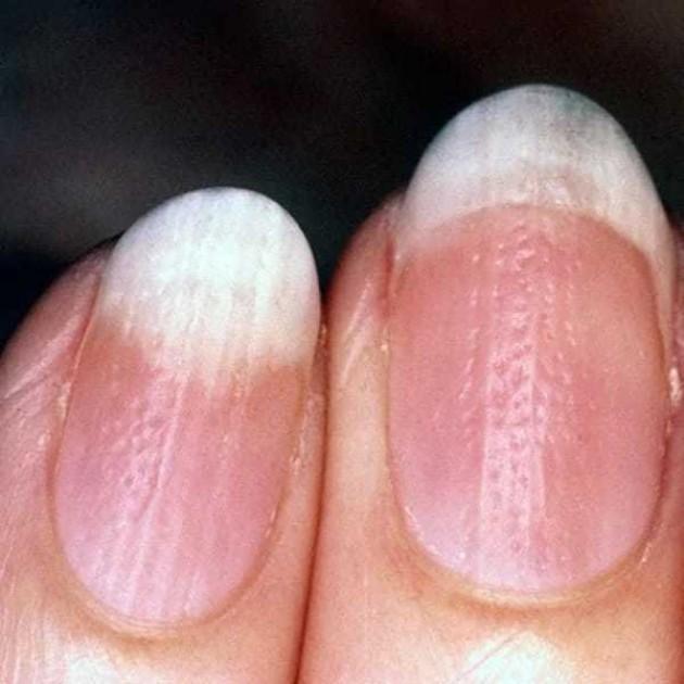 Псориаз ногтей (псориатическая ониходистрофия) | Лечение псориаза авторской методикой доктора Огневой. Как и где можно вылечить псориаз по уникальному методу