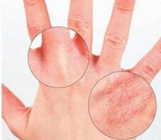 Трещины на пальцах — причины