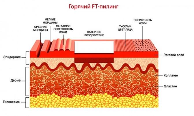 Фототермолиз