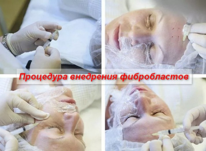Устранение рубцов атрофического типа после акне