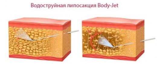 Жировые отложения на спине имеют разные причины возникновения