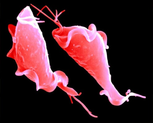 Профилактика урогенитальных инфекций урогенитальные инфекции