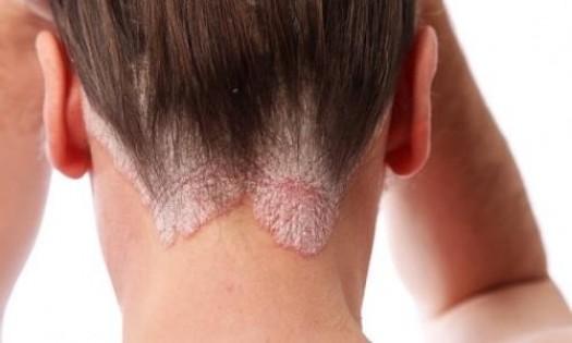 Псориаз на голове лечение, псориаз кожи головы