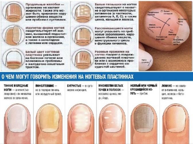 Диагноз по ногтям на пальцах рук