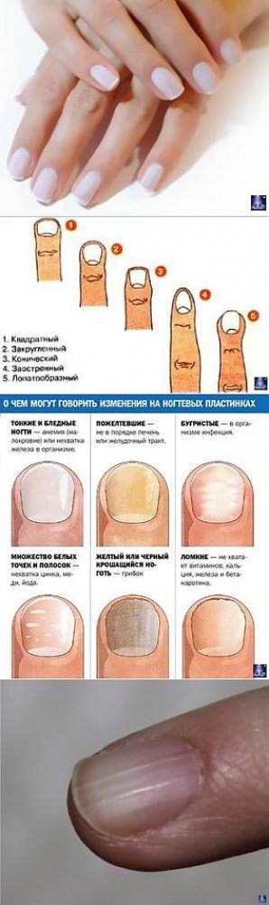 Почему не растут ногти, чего не хватает в организме: полезные советы