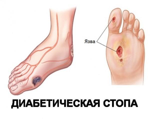 Трофические язвы на ногах при сахарном диабете: симптомы и лечение