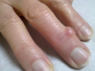 Шишки на пальцах рук: причины развития и лечение