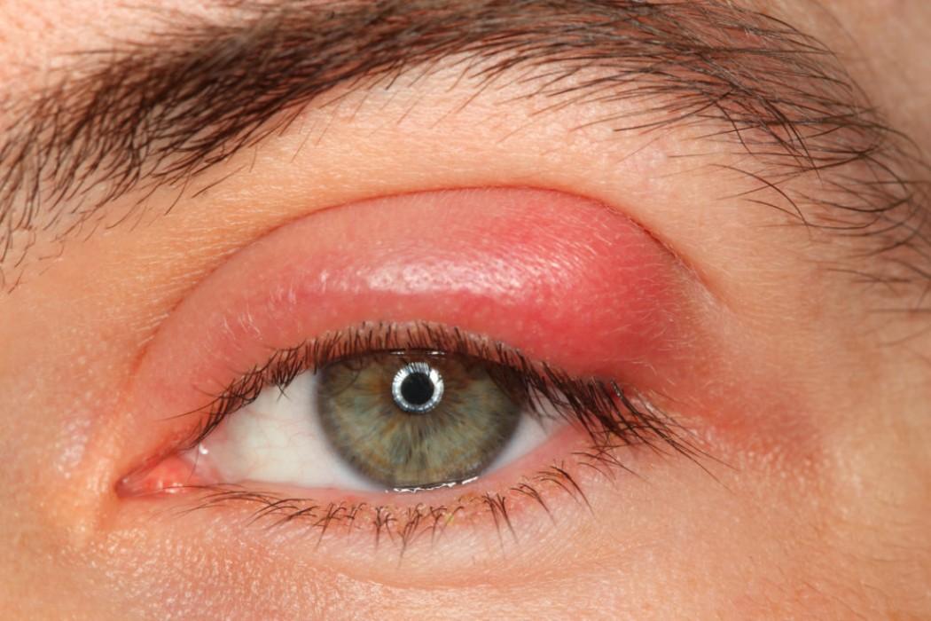 Передается ли ячмень на глазу воздушно капельным путем