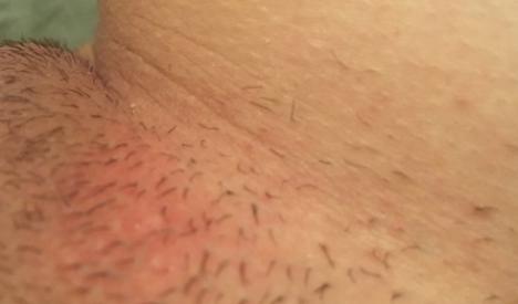 Можно ли самой вылечить фурункул на половой губе?