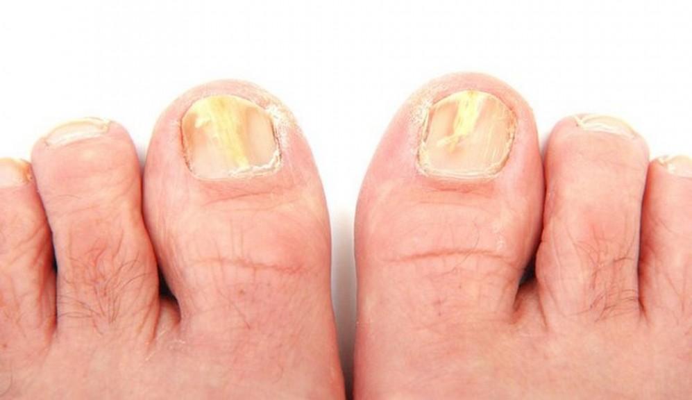 Обзор топа самых эффективных средств против грибка ногтей