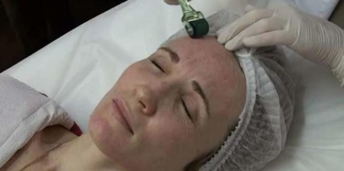 Как пользоваться мезороллером дома: прибор для омоложения лица