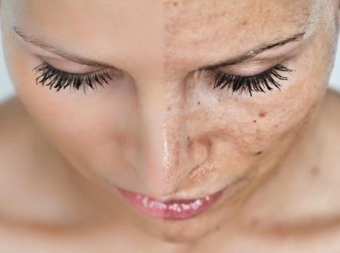 Меланоз. Причины, лечение лазером гиперпигментации кожи лица, цена