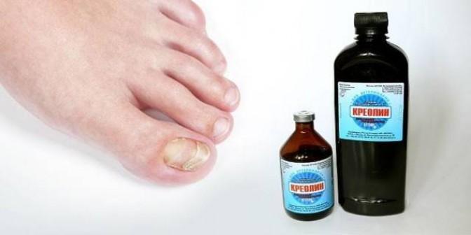 Жидкость Бережнова от грибка ногтей: как использовать средство