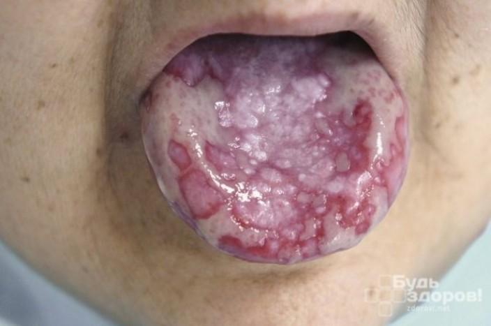 Симптомы и течение болезни