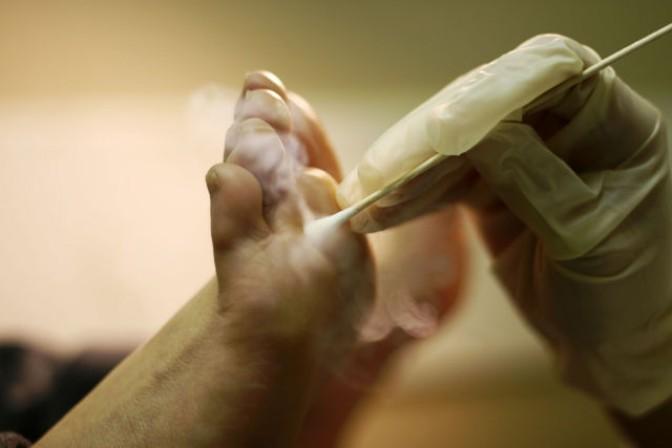 Объективные причины появления мозоли между пальцами ног