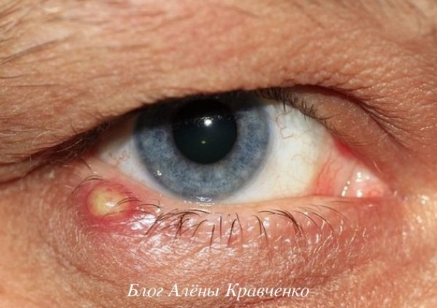 Ячмень на глазу — симптомы возникновения заболевания