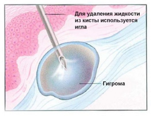Пункция