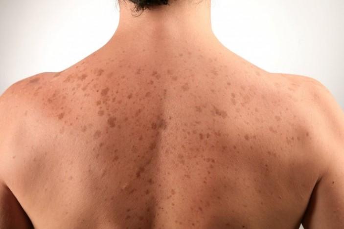 Методы лечения белых пятен на спине