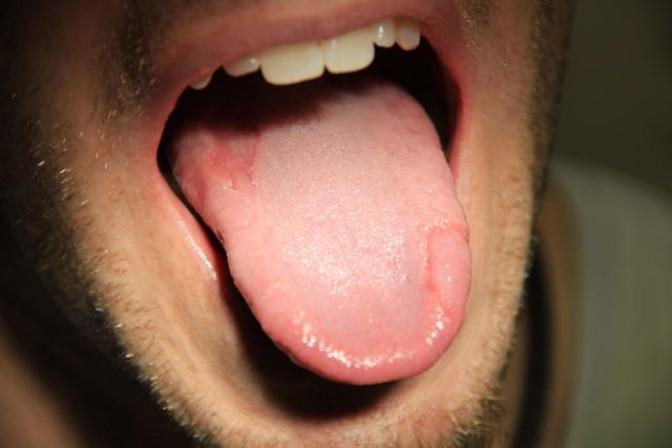 Типун на языке: причины и лечение, что такое типун на языке, как избавиться?