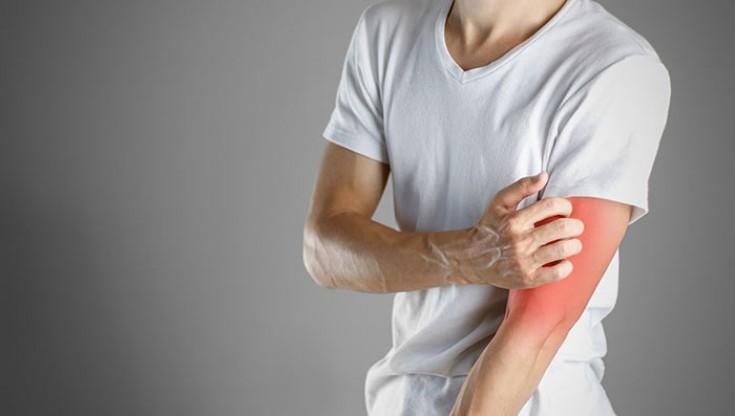 Как проявляется лимфома кожи, симптомы