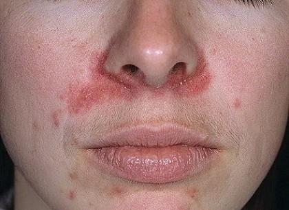 Локализация дерматита и особенности проявления