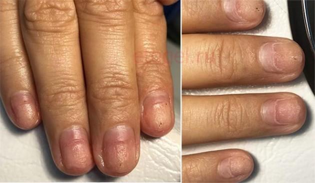 Причины онихолизиса после гель лака