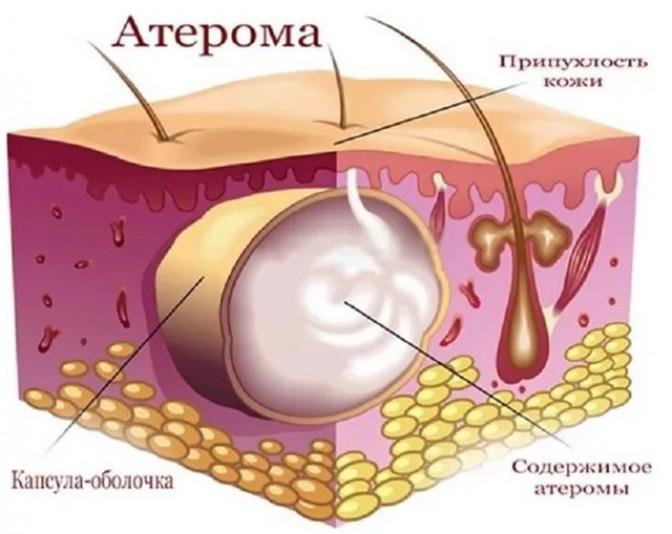 Как проходит лечение кисты сальных желез в паху