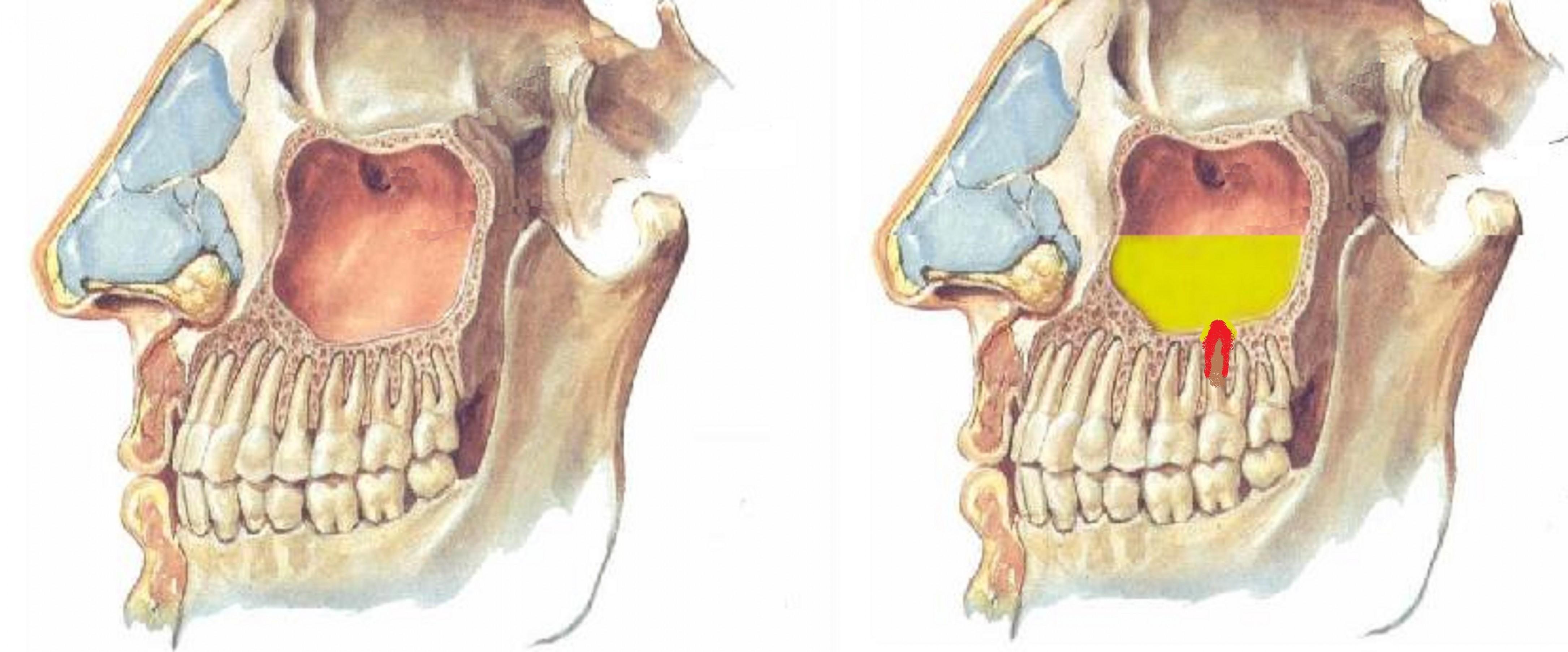 Гайморит, киста верхнечелюстной пазухи, пропало обоняние после посещения стоматолога