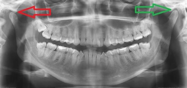 Болит и щелкает челюсть после протезирования или лечения зубов