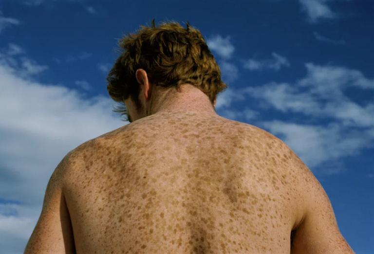 Из-за каких причин могут появляться веснушки на коже спины и рук