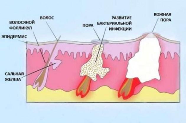 Особенности течения болезни и причины ее возникновения