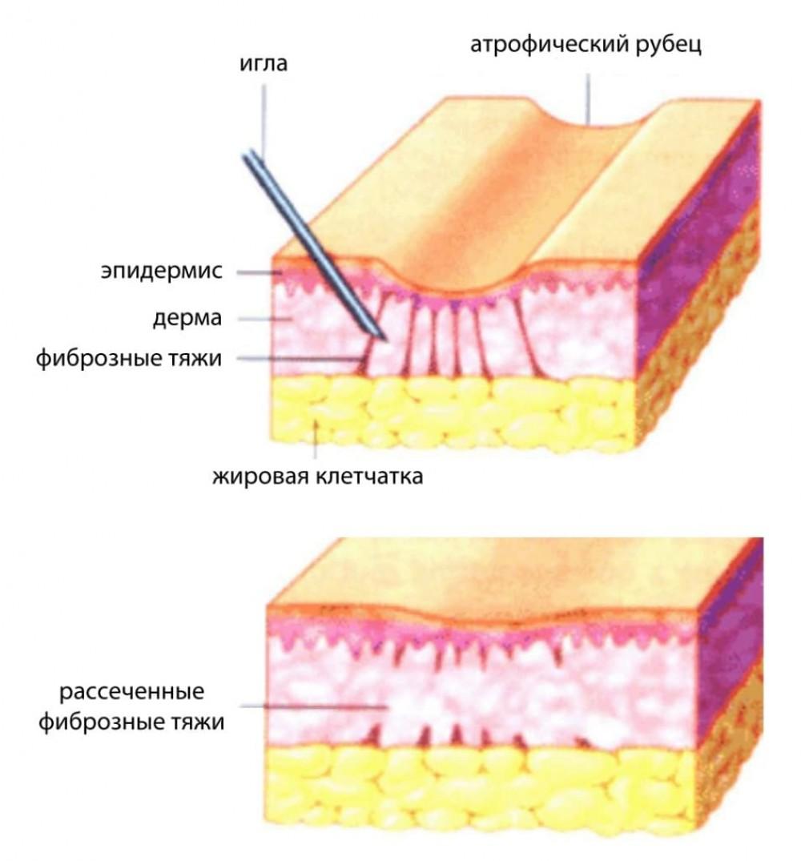 Почему рубцы после прыщей делают кожу неровной
